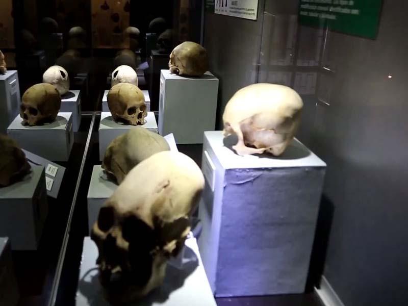 Trepanaciones craneanas en el Museo de Áncash